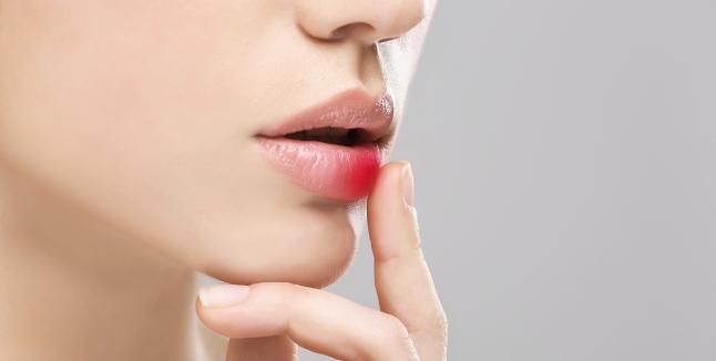 herpes oral herpes simplex
